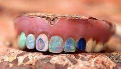 Harold Hodges Teeth