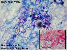 (speciation pending)  Bacteria , with some fungal similarities  Bronchial wash specimens sent to our laboratory were examined microscopicall...