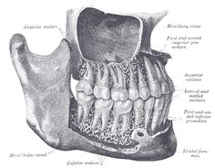 Gomphoses - Classification of Joints A gomphosis is a fibrous joint that binds the teeth to bony sockets (dental alveoli) in the maxilla bone and mandible. Functionally, a gomphosis is categorized as a: synarthrosis. Dental Anatomy, Medical Anatomy, Teeth Drawing, Anatomy Drawing, Henry Gray, Dental Pictures, Human Teeth, Dental Humor, Tooth Fairy Pillow