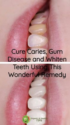 Cure Caries, Gum Disease and Whiten Teeth Using This Wonderful Remedy - Organic Healthy Tips