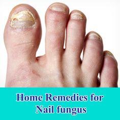 How To Naturally Treat Fingernail Fungus