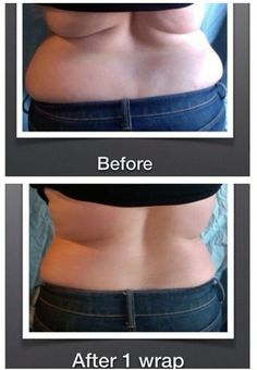 #Itworkswraps It works wraps before and after results after 1 wrap Get a box of 4 wraps wholesale as a loyal customer. Tighten Tone and firm any area you like. http://bodycontouringwrapsonline.com/wholesale