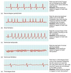 ekg list | In this image the QT cycle for different heart conditions are shown ...