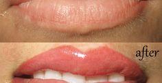 Permanent makeup lepper fyll