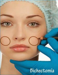 Su objetivo es mejorar la redondez y plenitud facial proporcionando un rostro más delgado, es clásico que se combine con rinoplastia o mentoplastía.