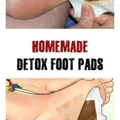 Detox foot cushions were long commonplace and utilized by Japanese individuals. Their working depends on their capacity to dispense with poisons. These stick-on cushions which ought to be set on th…