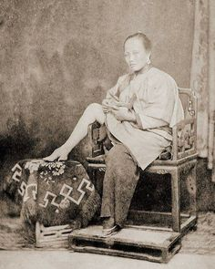 Chinese woman showing her bound foot. They were considered to be very beautiful & erotic.  The way they achieved this was barbaric, usually starting at an early age, maybe 3-6 yrs old and they'd bend the big toe under the foot binding it tighter and tighter as time went on. They would also break the arch of the foot. They had to be careful because the nails would grow into the foot causing an infection.  This was done to ensure the woman would find a suitable, affluent husband.
