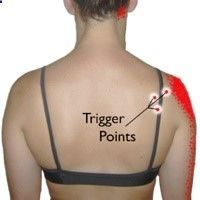 Infraspinatus Trigger Points: The Magicians of Shoulder Pain | TriggerPointThera...