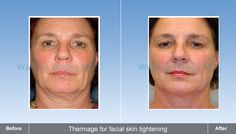 Thermage For Facial Lightening