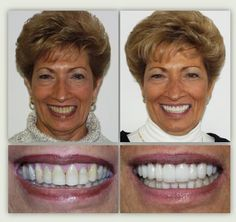 Before (left), After (right). Cosmetic dentistry by Dr. Mike Maroon of Advanced Dental in Berlin, CT. Dental Costs, Low Cost Dental Care, Dental Hygiene, Dental Health, Dental Aesthetics, Berlin, Beautiful Teeth, Dental Veneers, Porcelain Veneers