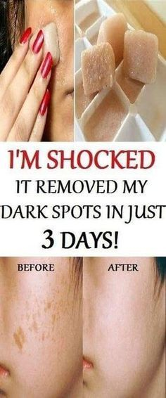 I'm SHOCKED It Removed My Dark Spots In 3 Days, Magic Remedy If you want to make your skin healthy and younger and at the same time to remove the dark spots you should use the powerful combination of pomegranate juice, lemon juice, potato juice and ice Beauty Secrets, Diy Beauty, Beauty Skin, Beauty Hacks, Beauty Care, Beauty Products, Beauty Guide, Face Beauty, Homemade Beauty