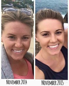 WHAT A DIFFERENCE A YEAR CAN MAKE!!! Check out my fellow consultant Morgan Butler's incredible results. She started with Reverse then added Redefine, the AMP MD Roller, Macro Exfoliator, and eye cream.   If you're ready to love the skin you're in message me!#ChangingSkinandChangingLives #Godsizeddreams #RFBlessings #AmpItUp https://sdkagebein.myrandf.com