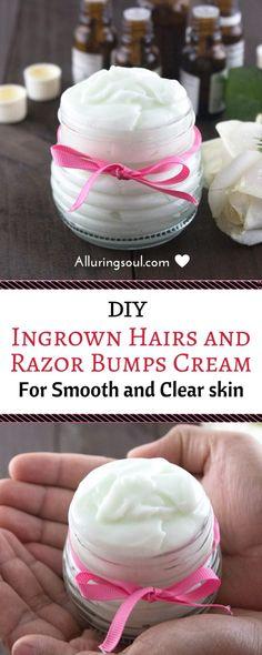 diy ingrown hair cream