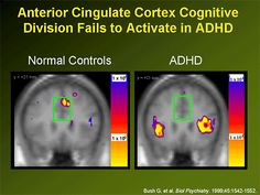 Anterior Cingulate Cortex Cognitive Division Fails to Activate in ADHD Anterior Cingulate Cortex, Autism Learning, Disability Awareness, Psychiatry, Adhd, Division, Fails, Teaching, Make Mistakes