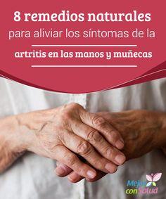 8 remedios naturales para aliviar los síntomas de la artritis en las manos y muñecas  Para lograr un alivio mayor conviene combinar el tratamiento oral con los remedios de uso tópico. De esta forma tratamos la dolencia de un modo integral