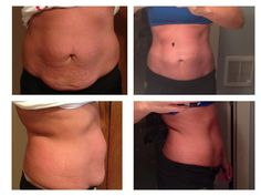 Before and after 6 wraps. laurenyoung.myitworks.com