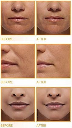 Anti Aging Remedies How to Get Rid of Deep Wrinkles Around the Mouth - We can't run away from aging, but what we can do is delay it as long as possible. Wondering how? Given here are natural anti aging remedies to help you out Beauty Care, Diy Beauty, Beauty Skin, Beauty Hacks, Beauty Tips, Beauty Products, Fashion Beauty, Face Skin, Face And Body