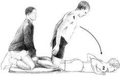 An eccentric approach to hamstring injuries: The Nordic hamstring exercise.