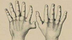 "Shown in this image is polydactyly -- extra fingers or sometimes toes -- one symptom of Ellis-van Creveld syndrome. The syndrome is commonly found among the Old Order Amish of Pennsylvania, a population that experiences the ""founder effect."" Genetically inherited diseases like Ellis-van Creveld are more concentrated among the Amish because they marry within their own community, which prevents new genetic variation from entering the population. Children are therefore more likely to inherit…"