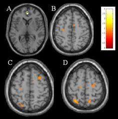 MRI OF THE BRAIN <3 The orange dots are brain lesions