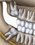 Faithful Dental Crown Before And After Impacted Wisdom Teeth, Impacted Tooth, Tooth Nerve, Tooth Extraction Healing, Emergency Dentist, Dental Crowns, Dental Surgery, Root Canal, Teeth Whitening