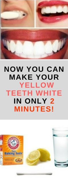 Healthy and white teeth are something that everybody desires. But to achieve this, it can take a lot of effort and time. You can go to the dentists for a whitening procedure, but it will cost you a lot, plus it`s not that healthy for your teeth Teeth Whitening Remedies, Natural Teeth Whitening, Instant Teeth Whitening, Teath Whitening, Remedies For Tooth Ache, Receding Gums, Belleza Natural, Oral Health, Teeth Health
