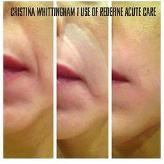 FYI- RodanFields Acute Care strips have the same active ingredients as some highly marketed injectables on the market. Our premium products are clinically proven and reviewed by the FDA. What more could you want for your ONE face? #rodanandfields #acutecare #goodbyewrinkles wrinklessminkles by 2guysandalittlelady