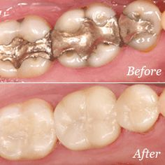 Crowns are a restorative procedure used to improve a tooth's shape or strengthen it. Crowns are most often used for teeth that are broken, worn, or have portions destroyed by tooth decay. Dental Bonding, Tooth Crown, Sedation Dentistry, Restorative Dentistry, Tooth Replacement, Teeth Whitening Remedies, Dental Cosmetics, How To Prevent Cavities