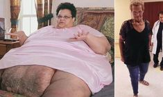 Obese mom bedridden for 3 years sheds and relearns how to walk — Daily Mail Weight Loss Plans, Weight Loss Journey, Skin Removal Surgery, Dr Nowzaradan, Women Looking For Men, Obese Women, Private Parts, Weight Loss Surgery, Need To Lose Weight