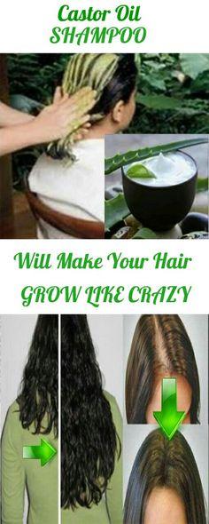 The Magic Shampoo It Will Make Your Hair Grow Like Crazy #hairgrow #shampoo