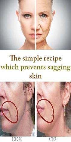 The simple recipe which prevents sagging skin #BEAUTY #REMEDIES