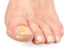 Soaking your feet in Listerine mouthwash for minutes, twice a day, will cure most cases of toenail fungus. Listerine contains antiseptic and disinfectant ingredients Fingernail Fungus, Toenail Fungus Remedies, Toenail Fungus Treatment, Natural Treatments, Natural Cures, Listerine Mouthwash, Cracked Nails, Toe Fungus, Beauty Tutorials