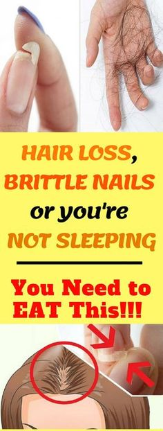 Simple Tricks On How To Get Healthy Hair Hair loss is a condition that affects many people. Hair loss can happen as a result of old age or other factors. Sleep Remedies, Hair Loss Remedies, Home Remedies, Natural Remedies, Insomnia Remedies, Natural Treatments, Health Tips, Health And Wellness, Health Articles