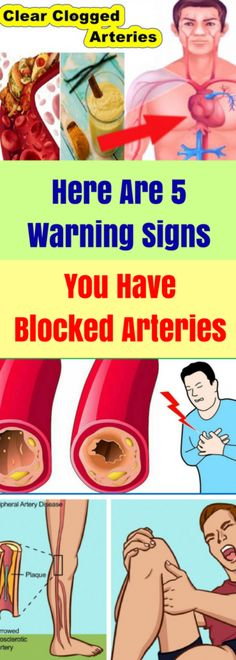 Here Are 5 Warning Signs You Have Blocked Arteries - Weight Pub