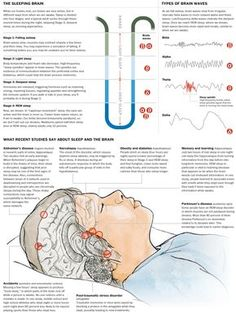 Chronic sleep deprivation makes adults susceptible to degenerating brain diseases. Shortage of sleep has been linked to health problems as different as diabetes and Alzheimer's disease. Chronic Sleep Deprivation, Sleep Apnea, Brain Diseases, Info Board, Brain Waves, Health Problems, Fibromyalgia, Adobe Illustrator, Brain Health