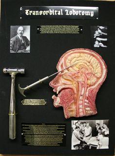 Transorbital Lobotomy curio Medical oddity Walter by briankubasco, $600.00