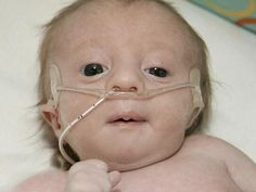 Go to http://www.trisomy18syndrome.com for more information on trisomy 18.