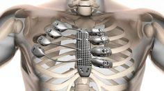 Trasplante de caja torácica fabricada en titanio con impresión 3D