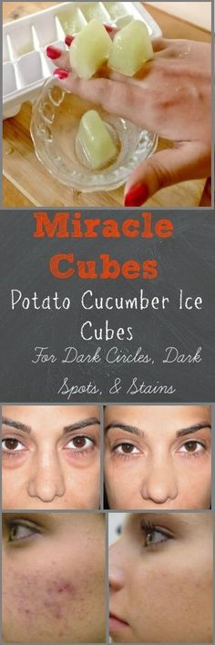 POTATO CUCUMBER ICE CUBES FOR CLEARANCE OF DARK SPOTS FROM THE FACE AND OTHER PARTS OF THE SKIN It is REALLY NATURAL SOLUTION