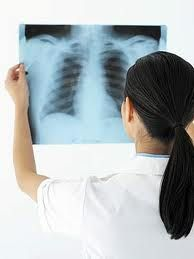 BSS DIPLOMA IN X-RAY TECHNOLOGY COURSE CODE: AHE003  COURSE NAME: BSS DIPLOMA IN X-RAY TECHNOLOGY  COURSE DURATION: TWO YEARS For further details visit www.microlifeindia.org