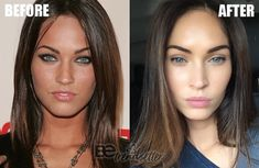 Megan Fox Plastic Surgery rumors include a nose job, cheek fillers, lip fillers, boob job, and Botox. We will be walking you through some plastic surgery before and after photos so that you can decide for yourself. Megan Fox Before Surgery, Megan Fox Plastic Surgery, Plastic Surgery Photos, Megan Fox Lips, Cheek Implants, Cheek Fillers, Dermal Fillers, Botox Lips, Lip Injections