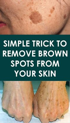 There is nothing scary with having a few brown spots, also known as age spots, but things get really messy when these spots affect one's self-confidence. Age spots are more common on the face area, limbs, shoulders and hands. Brown Spots On Hands, Brown Spots On Face, Sunspots On Face, Age Spot Removal, Baking Soda Shampoo, Skin Spots, Health And Beauty Tips, Healthy Tips, Tips