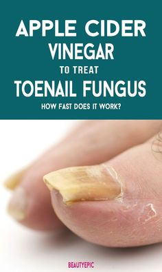 Remedies For Toenail Fungus Apple Cider Vinegar For Toenail Fungus: How Fast Does it Work? - apple cider vinegar for toenail fungus: Apple cider vinegar contains anti fungal and antibacterial properties and thereby kills those bacteria and fungus. Toe Fungus Remedies, Toenail Fungus Remedies, Toenail Fungus Treatment, Foot Soak Vinegar, Apple Cider Vinegar Remedies, Cellulite, 2 Ingredient Recipes, Fungi, Weight Loss Diets
