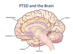 PTSD and the Brain