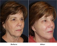 Procedures Performed: Endoscopic Brow Lift: Lateral Brow lift Deep Plane Minituck Facial Implants: Chin Implant Laser Resurfacing: Eyes and Mouth Dr. Freeman's Makeovers Facial Implant, Chin Implant, Endoscopic Brow Lift, Co2 Laser Resurfacing, Brows, Eyes, Beauty Ideas, Plane, Eyebrows