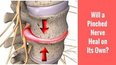 Knowing under what circumstances a pinched nerve will heal can help you recover from this type of injury. Sciatica Relief, Sciatica Pain, Sciatic Nerve, Nerve Pain, Chiropractic Center, Benton Harbor, Joseph, Healing, Make It Yourself