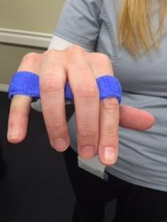 NEW Orthotics Course... YES learn how to make the Relative Motion Splint for extensor tendons or sagittal band injuries ...http://www.liveconferences.com/product.asp?cid=486