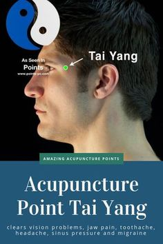 Acupuncture For Back Pain Tai Yang is an amazing point for clearing sinus pressure, migraines and headaches, vision problems, jaw and tooth pain. Connected to the Gallbladder Channel and deeply relates to cognitive function. Acupressure Therapy, Acupressure Massage, Acupressure Treatment, Acupuncture Benefits, Acupuncture Points, Acupressure Points, How To Clear Sinuses, Jaw Pain, Health And Fitness Magazine