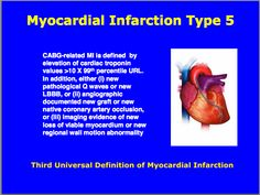 Third universal definition of Myocardial Infarction : Type 5 Cardiovascular Nursing, Myocardial Infarction, Cardiac Nursing, Acute Care, Circulatory System, Nurse Stuff, Cardiology, Student Studying, Nclex