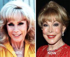 Barbara Eden, Under The Knife, Famous Women, Plastic Surgery, Batman, Wellness, Actresses, Celebrities, People
